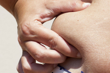 Melanoma, skin cancer, and lung and breast cancer are thought to be the cancers most able to spread through fat cells (Getty)