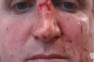 Knocked-out ref speaks of attack for first time