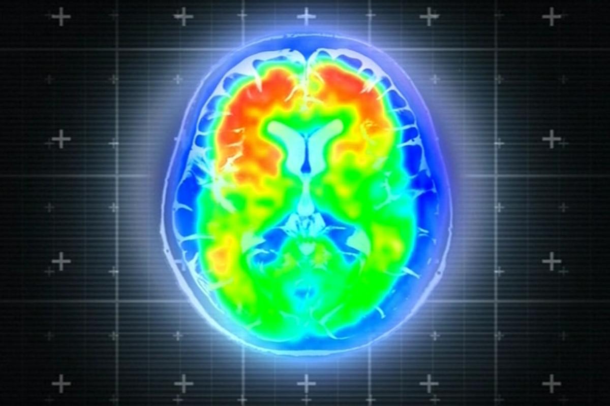 Drug Trials Offer 'Tantalising' Hope In Fight Against Alzheimer's